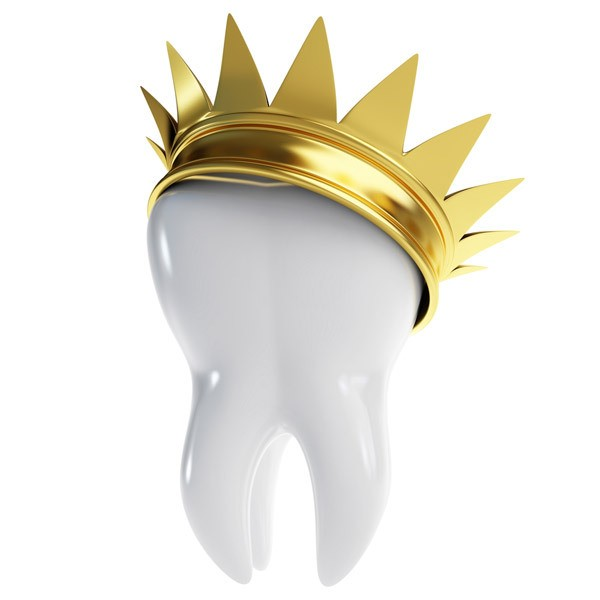 dental-crown-cartoon-reduce